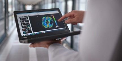 Mesterséges intelligencia segíti a stroke kezelését - Egyedülálló megoldást dolgoztak ki pécsi orvosok