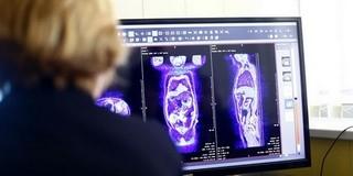 Új képalkotó készülékekkel gazdagodott a Klinikai Központ, gyorsabbak lesznek a vizsgálatok